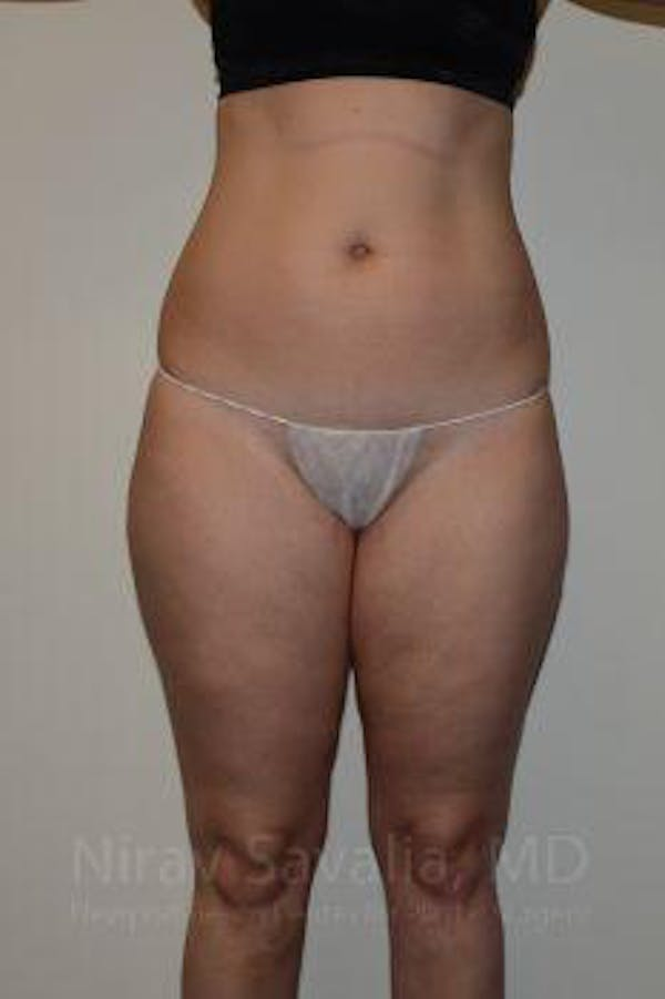 Liposuction Gallery - Patient 1655629 - Image 1