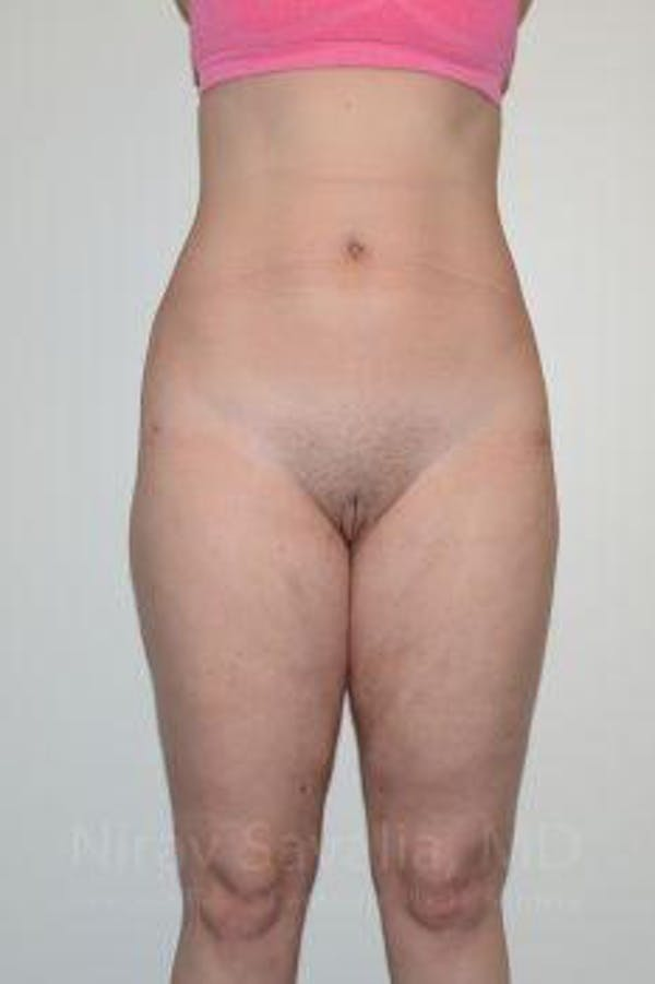 Liposuction Gallery - Patient 1655629 - Image 2