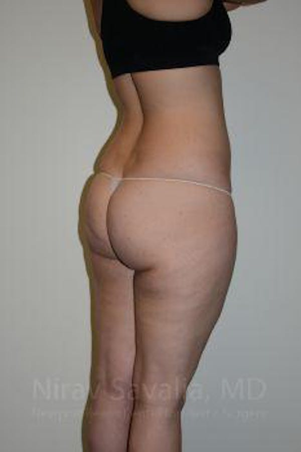 Liposuction Gallery - Patient 1655629 - Image 3
