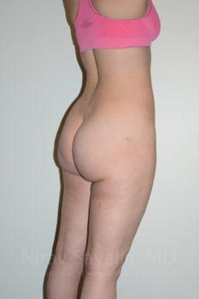 Liposuction Gallery - Patient 1655629 - Image 4
