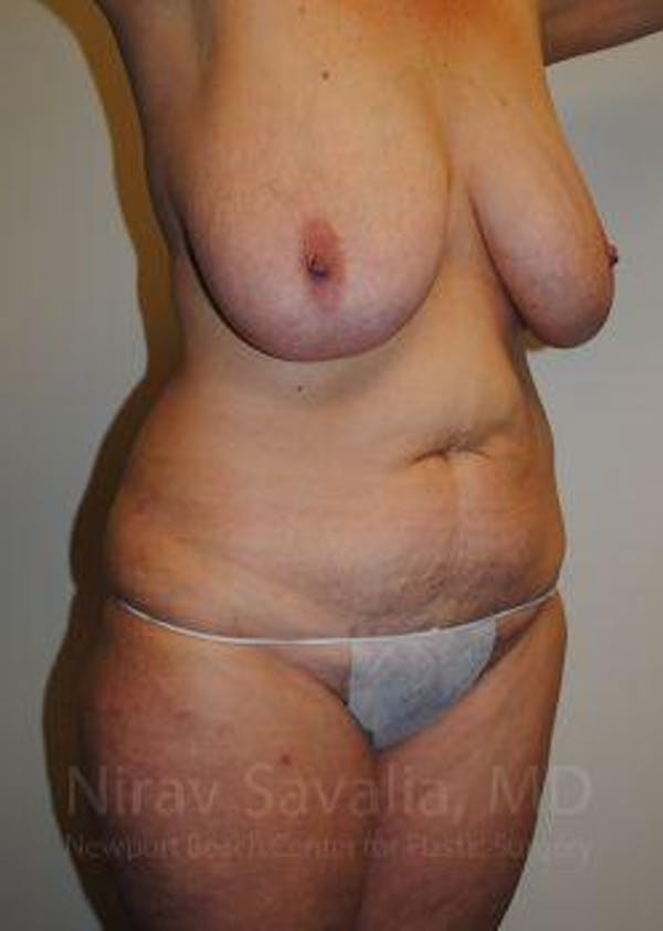Body Contouring after Weight Loss Gallery - Patient 1655628 - Image 7
