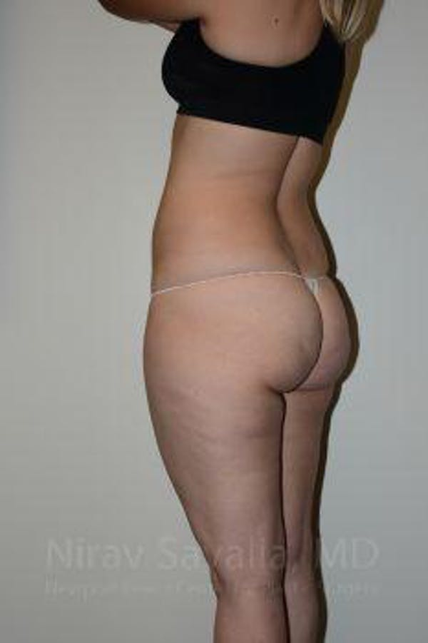 Liposuction Gallery - Patient 1655629 - Image 5