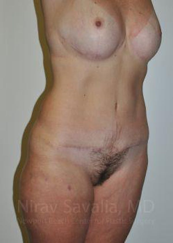 Body Contouring after Weight Loss Gallery - Patient 1655628 - Image 8