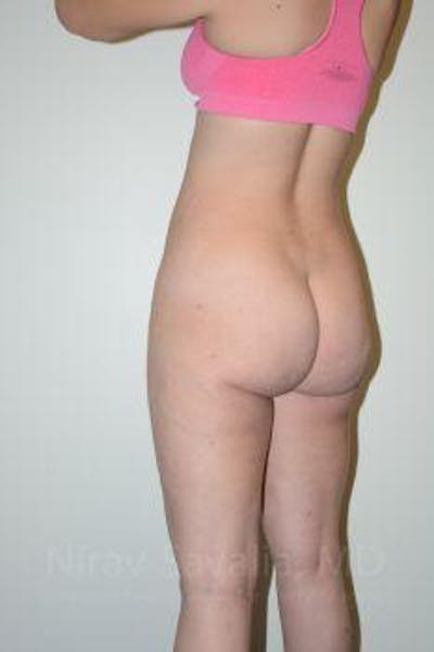 Liposuction Gallery - Patient 1655629 - Image 6