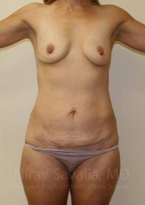 Mommy Makeover Gallery - Patient 1655630 - Image 1