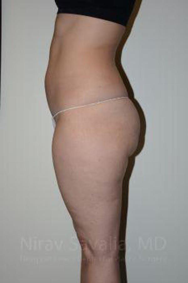Liposuction Gallery - Patient 1655629 - Image 7