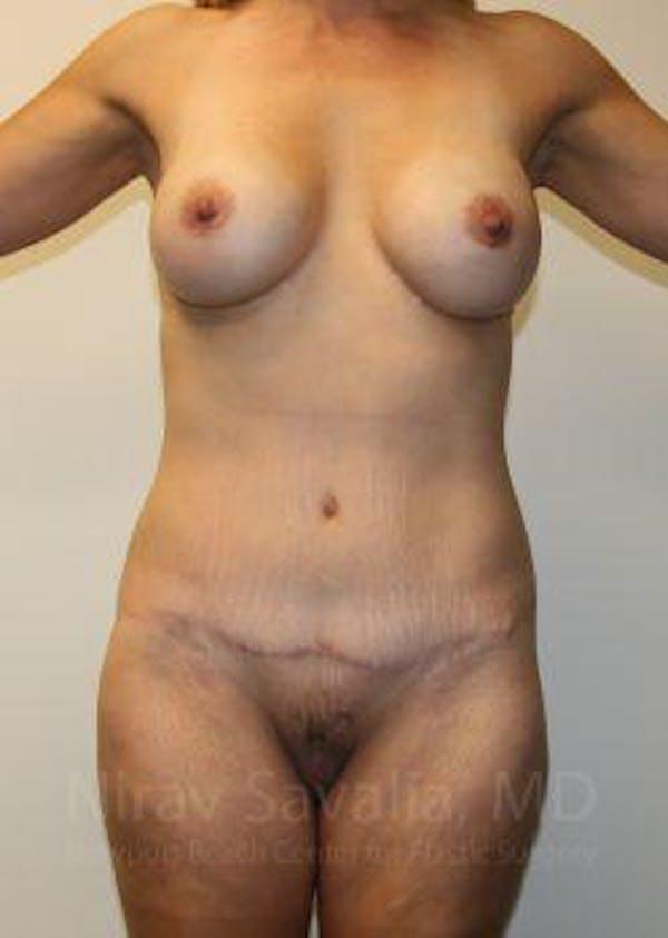Abdominoplasty / Tummy Tuck Gallery - Patient 1655631 - Image 2