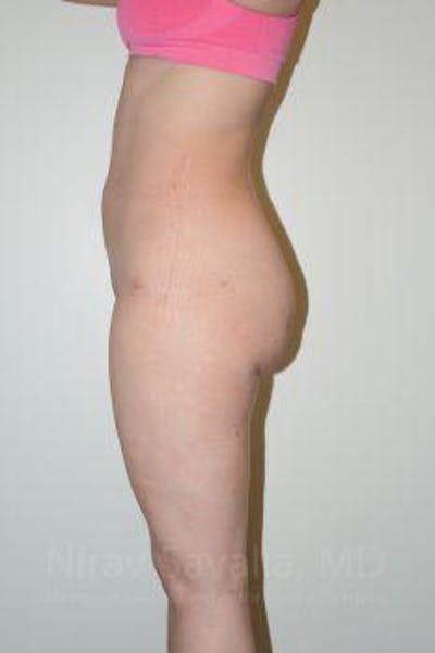 Liposuction Gallery - Patient 1655629 - Image 8