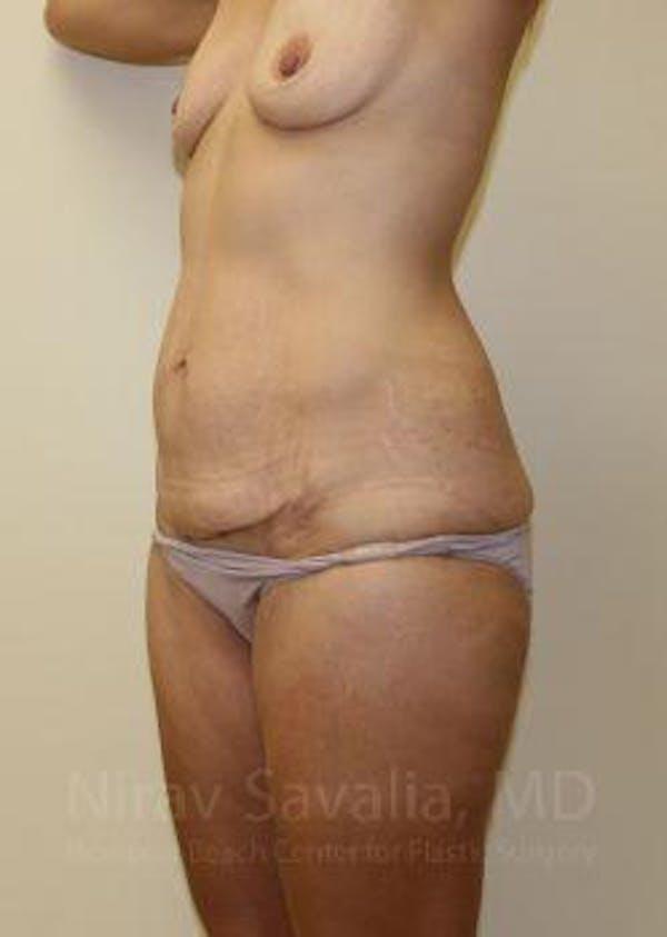 Abdominoplasty / Tummy Tuck Gallery - Patient 1655631 - Image 3