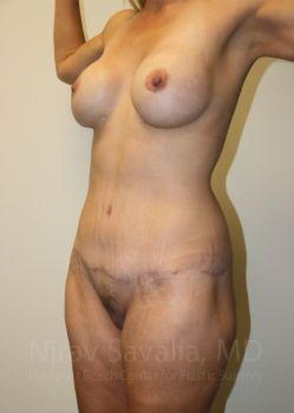 Mommy Makeover Gallery - Patient 1655630 - Image 4