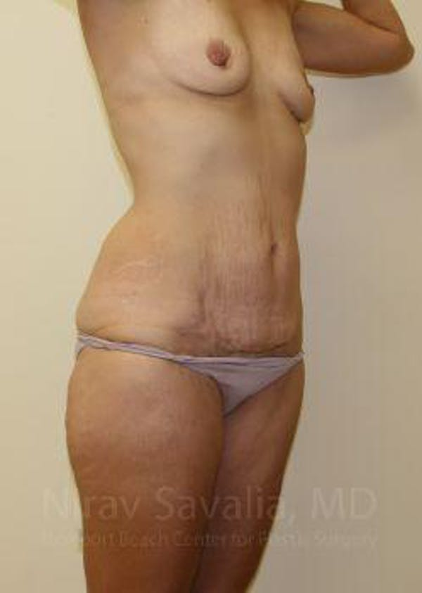 Mommy Makeover Gallery - Patient 1655630 - Image 5