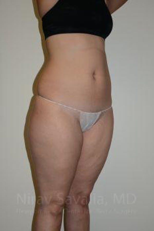 Liposuction Gallery - Patient 1655629 - Image 11