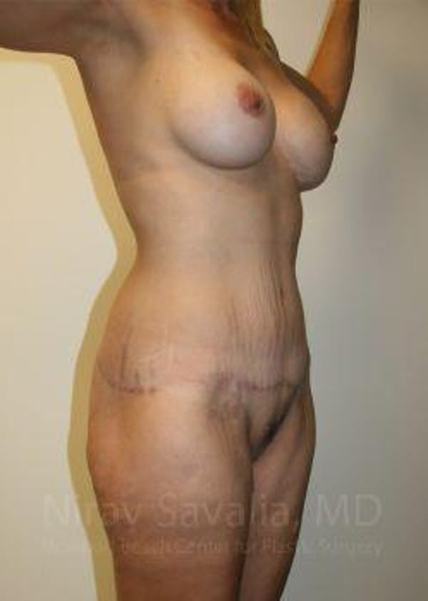 Mommy Makeover Gallery - Patient 1655630 - Image 6