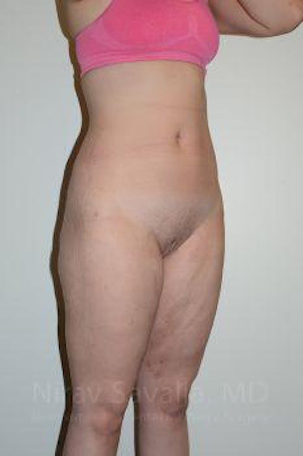 Liposuction Gallery - Patient 1655629 - Image 12