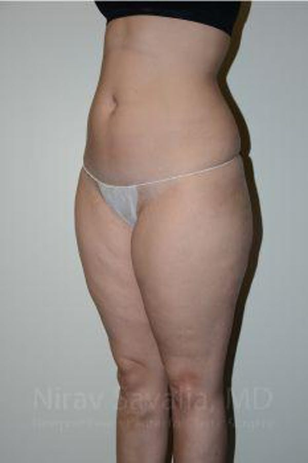 Liposuction Gallery - Patient 1655629 - Image 13