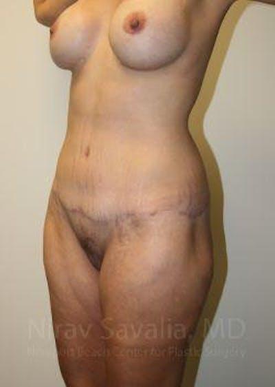 Abdominoplasty / Tummy Tuck Gallery - Patient 1655631 - Image 8