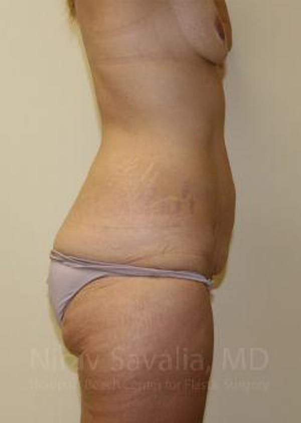 Abdominoplasty / Tummy Tuck Gallery - Patient 1655631 - Image 9