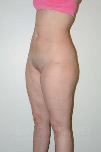 Liposuction Gallery - Patient 1655629 - Image 14