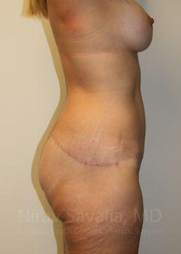 Abdominoplasty / Tummy Tuck Gallery - Patient 1655631 - Image 10