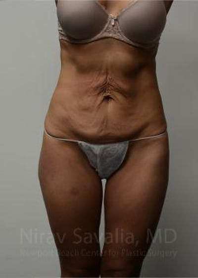 Body Contouring after Weight Loss Gallery - Patient 1655633 - Image 1