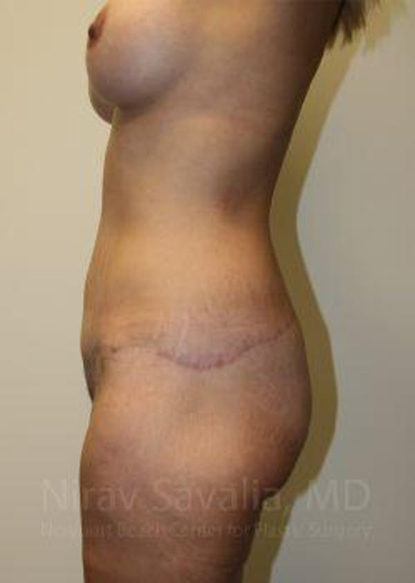 Mommy Makeover Gallery - Patient 1655630 - Image 12