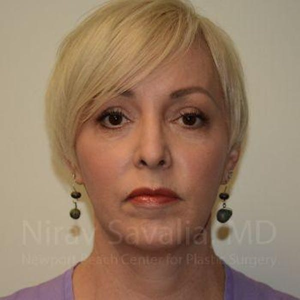 Liposuction Gallery - Patient 1655632 - Image 2