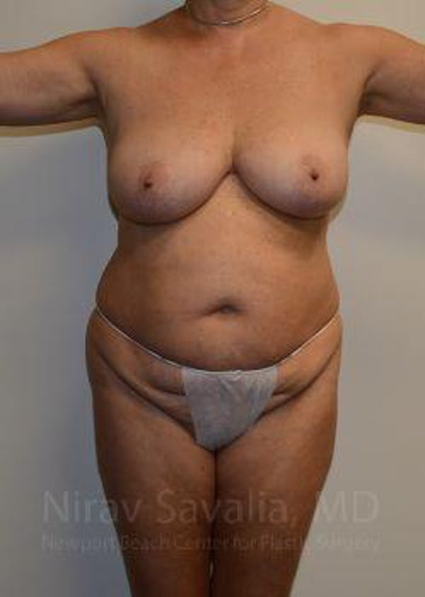 Mommy Makeover Gallery - Patient 1655635 - Image 1
