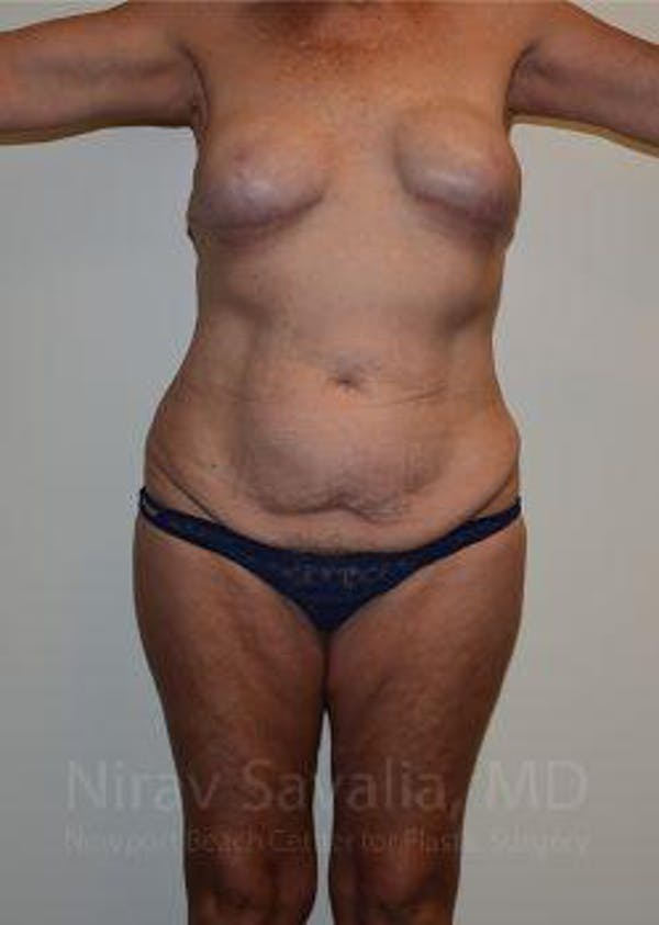 Abdominoplasty / Tummy Tuck Gallery - Patient 1655634 - Image 1