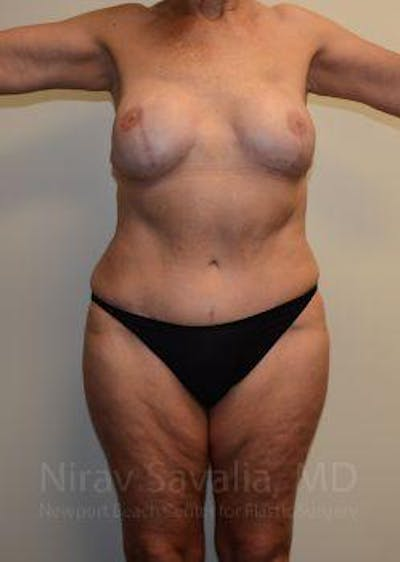 Abdominoplasty / Tummy Tuck Gallery - Patient 1655634 - Image 2