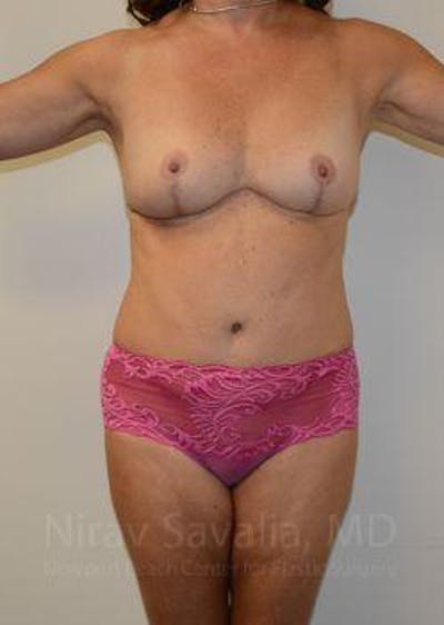 Mommy Makeover Gallery - Patient 1655635 - Image 2