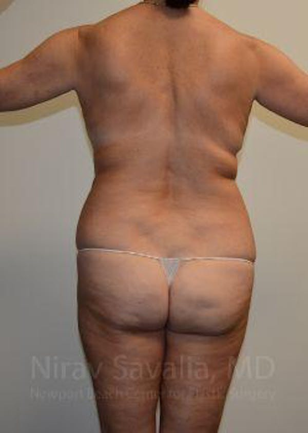 Mommy Makeover Gallery - Patient 1655635 - Image 3