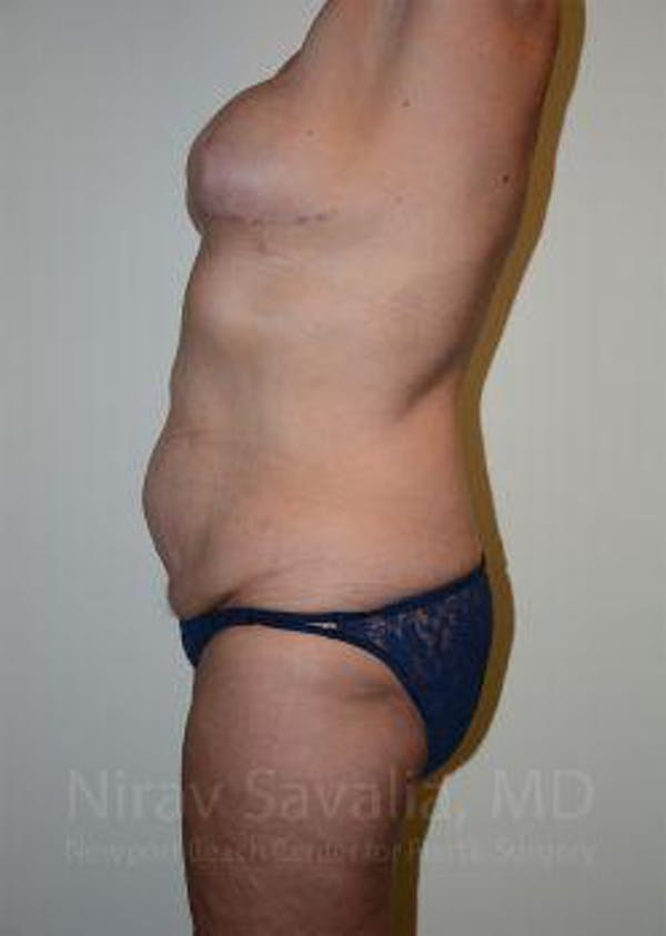 Abdominoplasty / Tummy Tuck Gallery - Patient 1655634 - Image 3