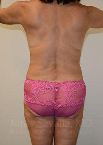 Mommy Makeover Gallery - Patient 1655635 - Image 4