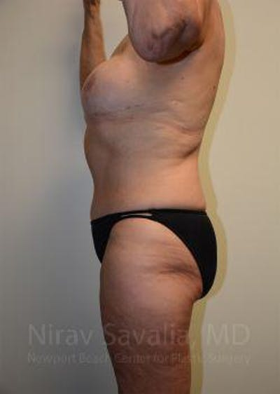 Abdominoplasty / Tummy Tuck Gallery - Patient 1655634 - Image 4