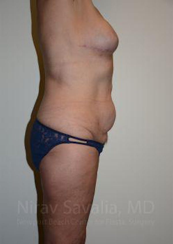 Abdominoplasty / Tummy Tuck Gallery - Patient 1655634 - Image 5