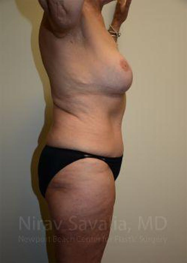 Abdominoplasty / Tummy Tuck Gallery - Patient 1655634 - Image 6