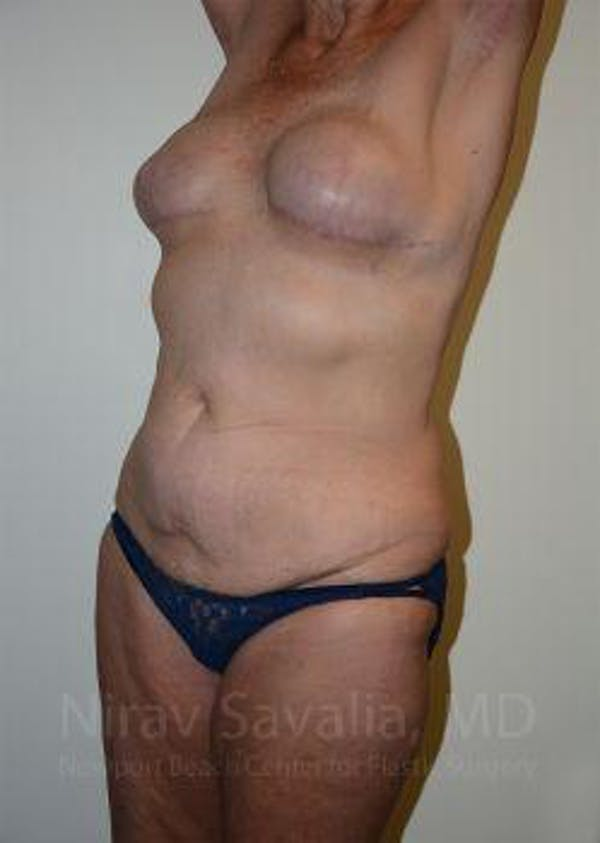 Abdominoplasty / Tummy Tuck Gallery - Patient 1655634 - Image 7