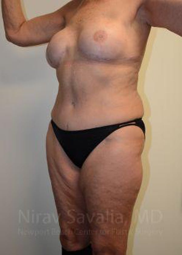 Abdominoplasty / Tummy Tuck Gallery - Patient 1655634 - Image 8