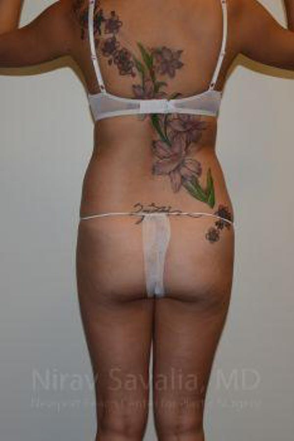 Liposuction Gallery - Patient 1655637 - Image 3