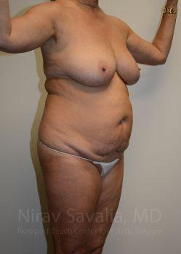 Mommy Makeover Gallery - Patient 1655635 - Image 9