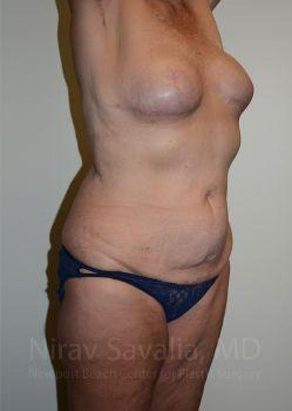 Abdominoplasty / Tummy Tuck Gallery - Patient 1655634 - Image 9