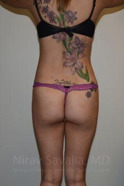 Liposuction Gallery - Patient 1655637 - Image 4