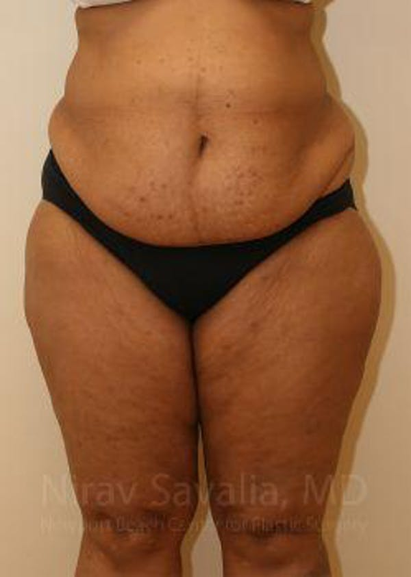 Body Contouring after Weight Loss Gallery - Patient 1655636 - Image 1