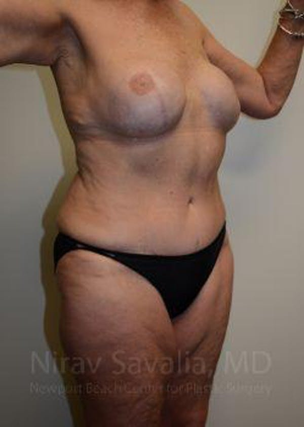 Abdominoplasty / Tummy Tuck Gallery - Patient 1655634 - Image 10