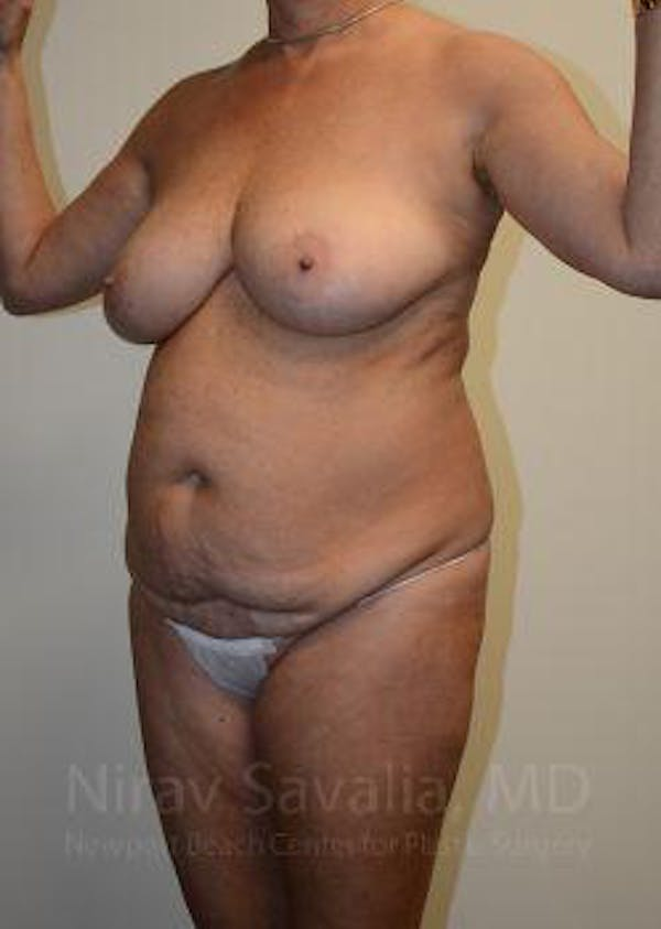 Mommy Makeover Gallery - Patient 1655635 - Image 11