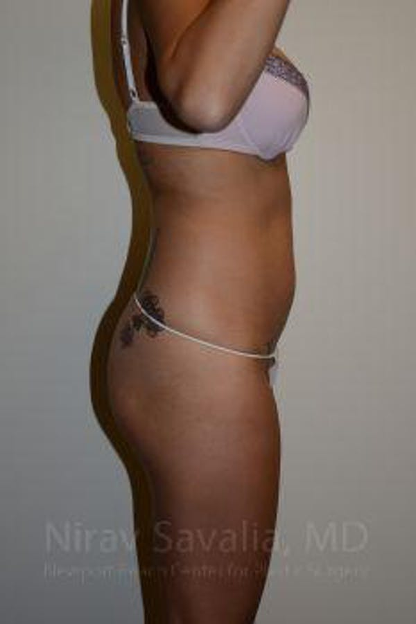 Liposuction Gallery - Patient 1655637 - Image 5