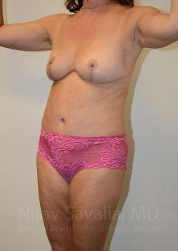 Mommy Makeover Gallery - Patient 1655635 - Image 12