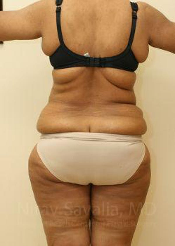 Body Contouring after Weight Loss Gallery - Patient 1655636 - Image 7