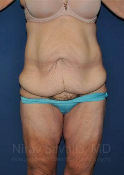 Abdominoplasty / Tummy Tuck Gallery - Patient 1655638 - Image 1