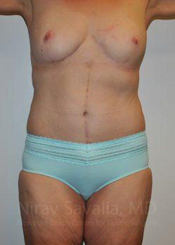 Abdominoplasty / Tummy Tuck Gallery - Patient 1655638 - Image 2